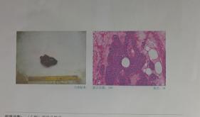 甲状腺疾病中心成功实施一例巨大甲状旁腺癌根治术