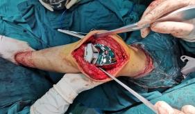 骨一科全膝关节置换术