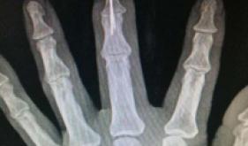 手足修复重建