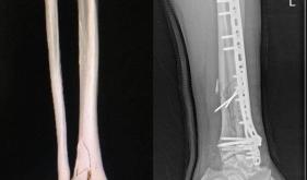 四肢骨折的微创治疗